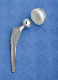 An artificial hip used for hip replacement