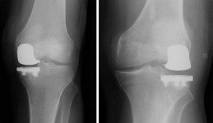A Uni knee implant as seen under an x-ray