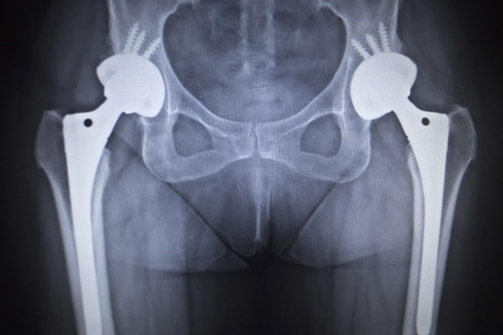 Our Guide to Recovery From Hip Replacement | Joint Replacement Surgery